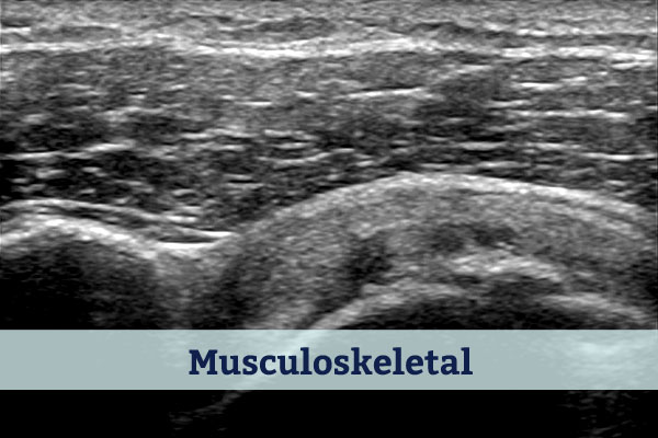 Musculoskeletal Ultrsound